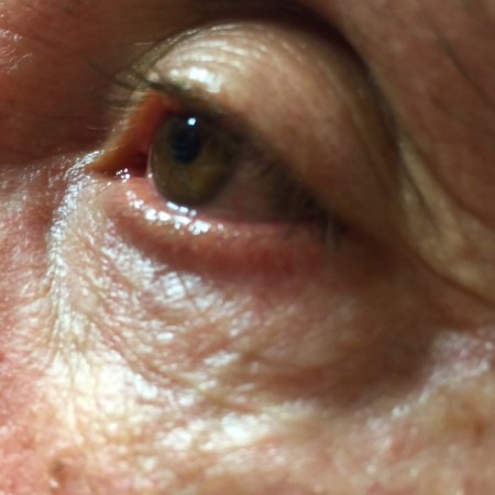 solco-lacrimale-1a