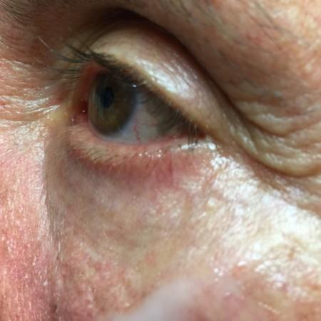 solco-lacrimale-1b