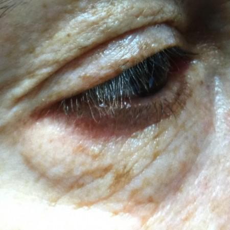 solco-lacrimale-2a