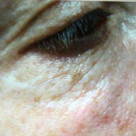 solco-lacrimale-2b