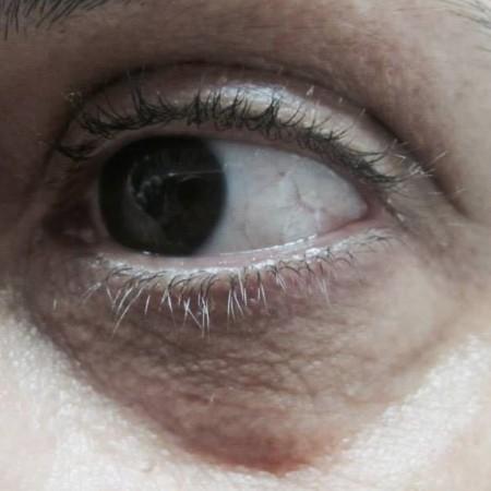 solco-lacrimale-3a