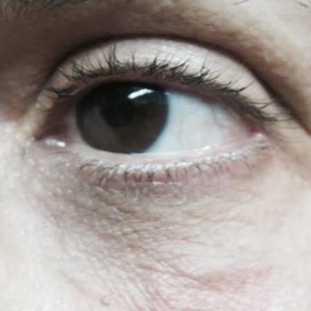 solco-lacrimale-3b
