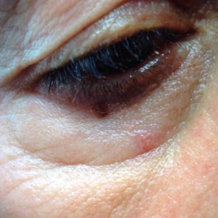 solco-lacrimale-4a