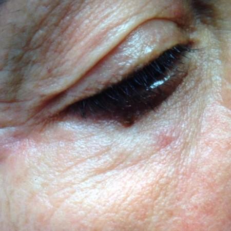 solco-lacrimale-4b