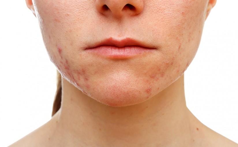 Trattamento acne Catanzaro