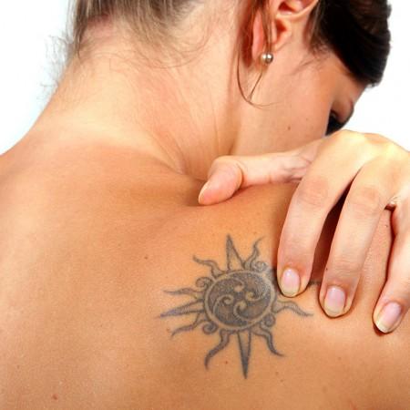 Rimozione laser tatuaggi Catanzaro
